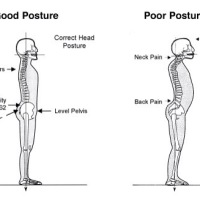Fix Anterior Pelvic Tilt: Strength and Stretch Exercises